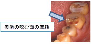 奥歯の咬む面の摩耗