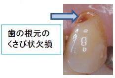 歯の根元の くさび状欠損