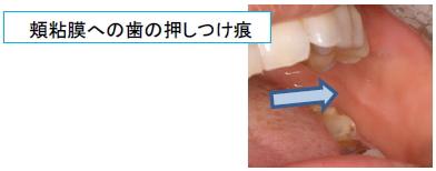 頬粘膜への歯の押しつけ痕