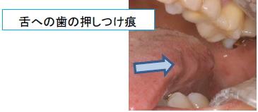 舌への歯の押しつけ跡