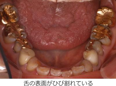 舌の表面がひび割れている